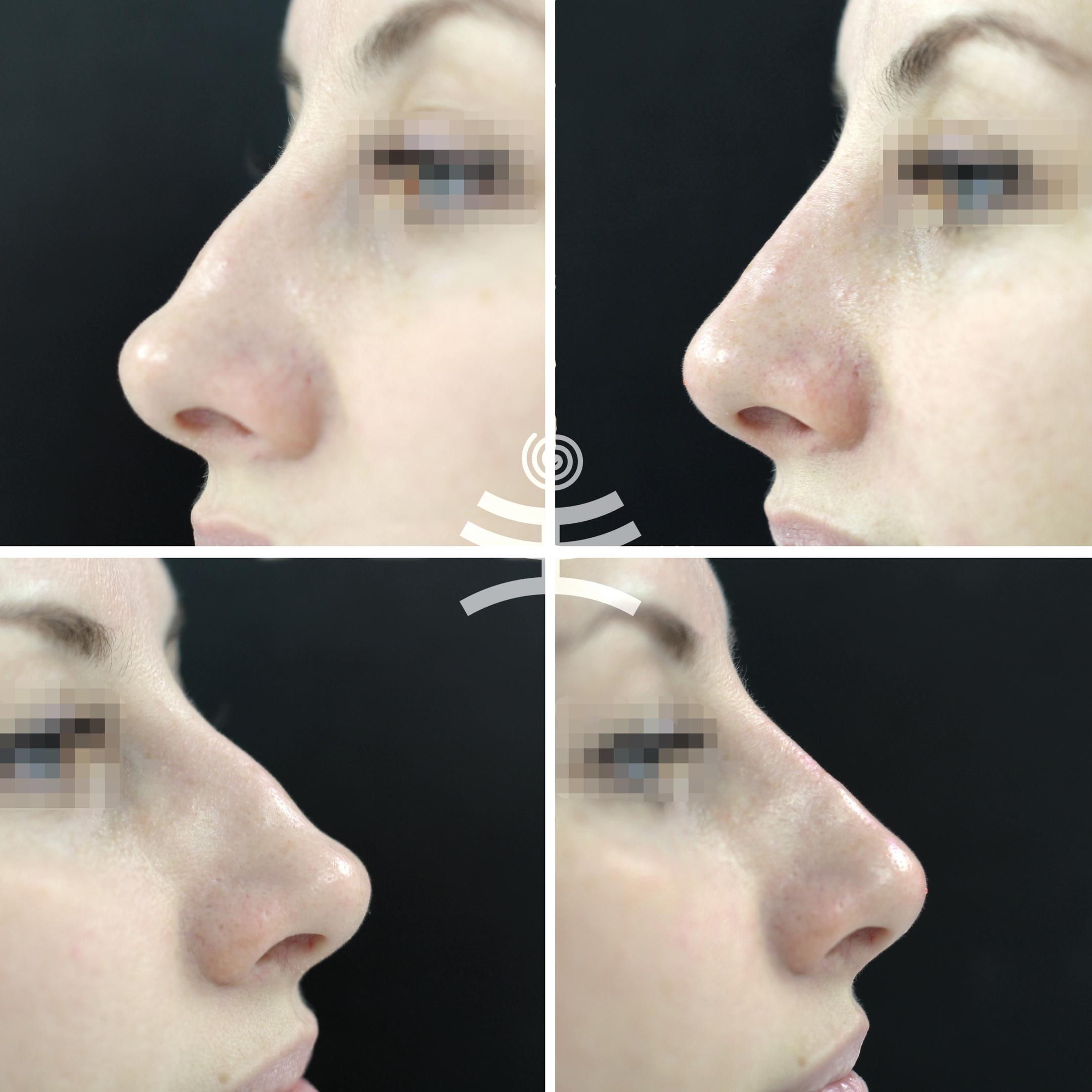 бесплатные пластика носа филлерами фото евразийский союз